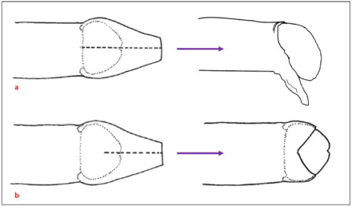 Diagrams Of The Most Common Penile Cut A Longitudinal Open I