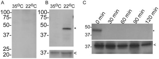 Temperature mediated production and surface localization of BrpA.A rabbit pre-immunization serum sample was used as a negative control (A), while hyperimmune serum generated against rBrpA was used to determine differential protein production at 22°C and 35°C (B). Immunoblots were also probed with chicken serum generated against B. turicatae rFlaB (B lower panel). Surface localization assays were performed by immunoblotting using the rabbit serum generated against rBrpA (C upper panel) and chicken serum generated against rFlaB (C lower panel). Molecular mass is depicted in kilodaltons on the left of each blot. The asterisk and arrowhead indicate the expected size of BrpA and FlaB, respectively.