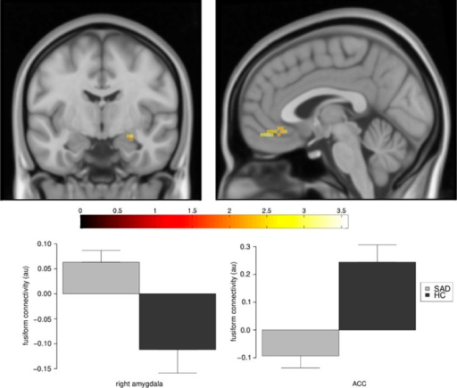 Changes in fusiform gyrus connectivity in patients with social anxiety disorder (SAD) compared with healthy controls (HC) during processing of fearful over neutral faces. The fusiform showed greater connectivity (SAD>HC) with the amygdala (left, coronal plane at y=−7; illustrative P-threshold of P<0.05 uncorrected) and less connectivity (SAD<HC) with the ventromedial prefrontal cortex (vmPFC; right, sagittal plane at x=−3; illustrative P-threshold of P<0.005). The colorbar indicates t-values. The graphs display extracted measures of connectivity. Error bars represent s.e.m.