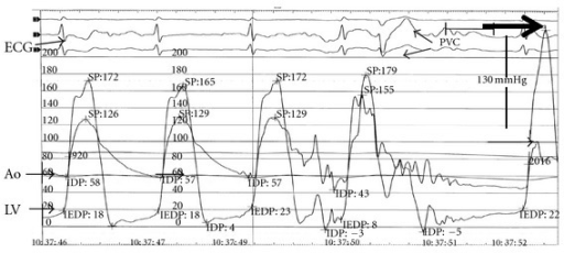 Pressure tracings show a sharp rise in LV outflow gradient that follows the pause associated with PVC. A dynamic obstruction leads to a concomitant fall in aortic pressure and a disproportionate (46 to 130 mmHg) increase in gradient. This phenomenon, known as the Brockenbrough-Braunwald-Morrow sign, is part of the classical description of hypertrophic obstructive cardiomyopathy. Ao: aorta; ECG: electrocardiogram; LV: left ventricle; PVC: premature ventricular complex.