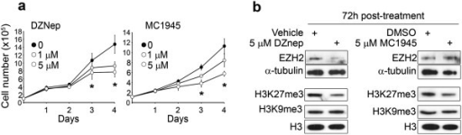 Pharmacological inhibition of EZH2 prevents embryonal RMS cell proliferation. (a) RD cells cultured in proliferating growth medium (GM, i.e. supplemented with 10% of fetal calf serum) were treated daily with either the S-adenosyl-L-homocysteine hydrolase inhibitor 3-deazaneplanocin A (DZNep) (left panels) or the EZH2 catalytic inhibitor MC1945 (right panels) at the reported concentrations or with vehicle (i.e., water for DZNep or DMSO for MC1945) and harvested and counted at the indicated time points. *P < 0.05 (Student's t-test); Bars, SD. Three independent experiments in duplicate. (b) Western blot showing EZH2 along with histone H3 trimethylation on Lys27 (H3K27me3), and on Lys9 (H3K9me3) levels in RD cells treated for 72 h with 5 μM DZNep (left panel) and 5 μM MC1945 (right panel) or with vehicle (i.e., water or DMSO). Total H3 and - tubulin amounts were shown as the loading controls. Representative of three independent experiments.