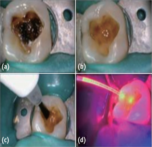 (a) Preoperative; (b) After caries excavation; (c) PAD solution application; (d) PAD light application.PAD, photo-activated disinfection.