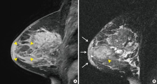 Magnetic resonance imaging: sagittal view of the left breast. (A) Contrast-enhanced magnetic resonance imaging shows an ill-defined and partially multilobular contoured lesion with rim-like enhancement in the subareolar area of the left breast (arrowheads) with additional diffuse parenchymal enhancement. The lesion (arrowheads) visible in the subareolar area correlates to the lesion detected by B-mode gray scale ultrasonography (Figure 1). This lesion appeared to be an abscess consistent with mastitis (1.5-T MR scanner, 3D fat-suppressed T1-weighted Gradient Echo Sequences; contrast injection of 0.2 mL/kg gadodiamide [OmniscanTM; GE Healthcare] was administered by manually followed by a 20-mL saline flush). (B) T2-weighted image showing high signal intensity diffuse edematous changes with skin thickening (arrows) and an ill-defined high signal intensity lesion in the subareolar area (arrowhead), correlated with the lesion with rim-like enhancement.