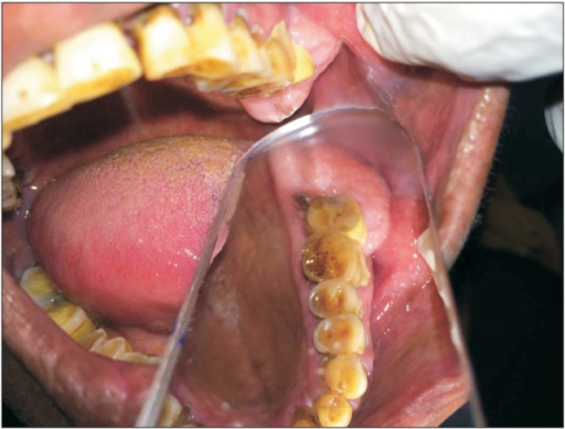 Buccopalatal extent of the lesion.