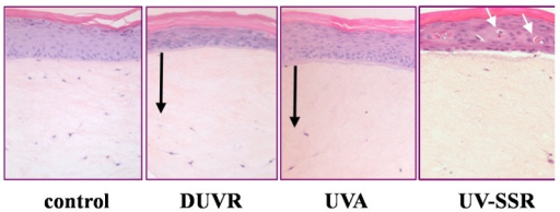 Morphological changes induced by the biologically efficient doses of DUVR (13 J/cm2), of UVA (25 J/cm2) or of UV-SSR (5.4 J/cm2) in reconstructed human skin [43,44,45,46]. Black arrows indicate the zone where the incidence of fibroblasts has decreased. White arrows indicate sunburn cells.