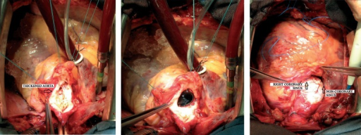 "Images from the surgery. Aortotomy in inverted ""Y"", thickened aorta. Mechanicalaortic prosthesis positioned. Final external appearance, with a pericardialpatch extending to the right coronary and non-coronary sinus."