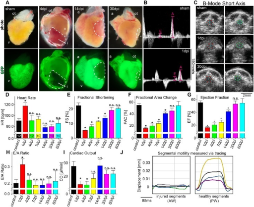 Longitudinal echocardiographic evaluation of cardiac function after cryoinjury.(A) Lateral brightfield (top) and fluorescent (bottom) images of hearts derived from sham operated transgenic zebrafish [Tg(myl7:GFP)f1] and after cryoinjury at depicted time points. Dashed lines indicate injured myocardial area (i). (B) PWD recordings from sham (top) and cryoinjured zebrafish at 1dpi (bottom) demonstrating decreased A-wave and increased E-wave amplitudes indicative for diastolic dysfunction. (C) Representative SAX images from sham (upper row) and cryoinjured zebrafish at 1dpi (middle row) and at 30dpi (lower row) with end-diastolic dimensions illustrated in red and end-systolic dimensions in green. (D-I) Quantification of changes in (D) heart rate (HR), (E) fractional shortening (FS), (F) fractional area change (FAC), (G) ejection fraction (EF), (H) E/A ratio and (I) cardiac output (CO) at baseline and at indicated time points during regeneration after myocardial injury. Small number in (D) indicates number of animals analyzed (J) Speckle-tracking analysis of segmental displacement shows akinesia of injured (green, pink and light blue line) as compared to the non-injured segments (yellow, purple and dark blue line). The average curve of all segments is illustrated in black. For color coding of different segments see Fig 2B. Values are expressed as means ± SEM; a, atrium; i, injured area; ot, outflow tract; v, ventricle; AW, anterior wall; PW, posterior wall; *, p<0.05; unpaired student's t-test and ANOVA with post hoc comparisons by Bonferroni's multiple comparison test.