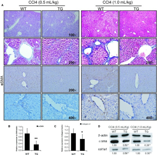 Overexpression of pre-miR-483 inhibits CCl4-induced liver fibrosis in transgenic mice. (A) Haematoxylin and eosin and Masson staining of liver sections from transgenic and wild-type mice (×100/×200), immunohistochemical analysis of α-SMA and collagen1α1 (×200/×400). The results show increased collagen deposition in the transgenic mice compared to the wild-type mice, and the degree of deposition correlates with the dose of CCl4. The level of α-SMA and collagen1α1 of the WT mice are higher than in the transgenic mice. (B) The transcriptional level of α-SMA in liver. The transgenic mice presented with less α-SMA in the liver fibrosis induced by CCl4 (0.5 ml/kg). (C) The mRNA expression of collagen1α1 as determined by qRT-PCR. (D) The translationl level of α-SMA and collagen1α1 in WT and transgenic mice liver treated with low and high dose of CCl4. Overexpression of miR-483 reduced the up-regulation of α-SMA and collagen1α1 in mouse liver induced by CCl4. *P < 0.05, **P < 0.01.