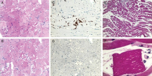 Muscle biopsy during life (A–D) and at autopsy (E and F). (A) Anterior thigh biopsy shows numerous fibers with decreased caliber and angulated fibers (H&E, ×10). (B) Individual myocyte necrosis and myophagocytosis are evident (H&E, ×20). (C) CD68-positive macrophages engulfing necrotic myocytes (×20). (D) CD45 immunostain is negative, illustrating the absence of myositis (×10). (E) Angulated fibers with decreased caliber are seen in the diaphragm (H&E, ×10). (F) High power view of individual myocyte undergoing myophagocytosis (×40).
