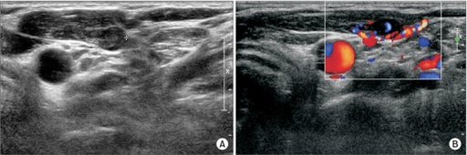Ultrasonographic image of a 68-year-old female with recurrent hyperparathyroidism. (A) A 1.3 cm × 0.6 cm round hypoechoic nodule in the left sternocleidomastoid muscle. (B) The nodule was well supplied with vessels according to Doppler flow mode.