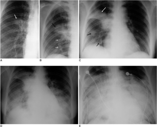 Serial radiographic changes in a 34-year-old female with SARS. The patient expired on the tenth day after fever onset.A. A close-up view of a chest radiograph in the posteroanterior projection obtained 3 days after fever onset shows opacity (arrow) mainly in the medial aspect of the right middle lung (radiographic score = 1).B. A close-up view of a chest radiograph in the posteroanterior projection obtained 4 days after fever onset shows progression of the right perihilar opacity (black arrow) in the right middle and right lower lung zone (white arrows) (radiographic score = 3).C. A Follow-up chest radiograph in the anteroposterior projection obtained 8 days after fever onset shows progression of the right perihilar opacity to the right upper zone (white arrow), middle and lower lung zones (black arrows) (radiographic score = 4).D. A follow-up chest radiograph in the anteroposterior projection obtained 9 days after fever onset shows marked progression of lung opacities to the right lung as well as to the middle and lower zones of the left lung (radiographic score = 12).E. A follow-up chest radiograph in anteroposterior projection obtained 10 days after fever onset shows progression of lung opacities to involve mainly the middle and lower zones of bilateral lungs (radiographic score = 14). The patient expired on the tenth day after fever onset.