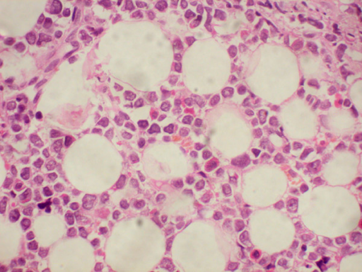 Histopathology of orbital mass showing a round cell tumor infiltrating the orbital fat tissues (hematoxylin & eosin, × 400).