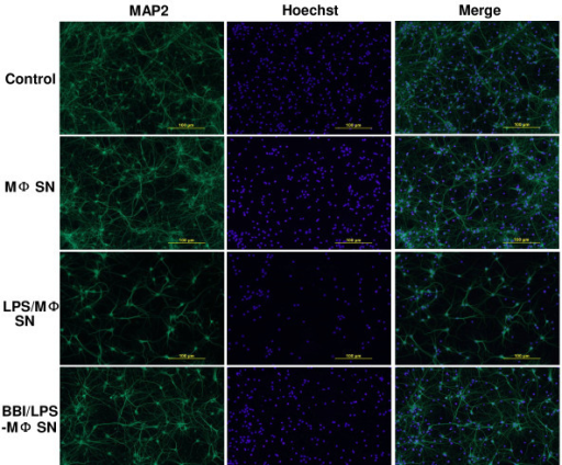 Immunofluorescence assay of neuronal loss induced by LPS-activated macrophages (MΦ). Rat cortical neurons were treated either with complete neurobasal medium (control) or with supernatant from unactivated donor-matched macrophage (MΦ SN), from LPS-activated macrophage supernatant (LPS/MΦ SN), or from BBI-treated and LPS-activated macrophage supernatant (BBI/LPS/MΦ SN) for 24 h. Cells were then washed with PBS and fixed in ice-cold methanol. Cells were incubated with mouse anti-MAP-2 antibody (1:100) for 1 h, then with Alexa 488-conjugated anti-mouse IgG for 30 min. Scale bars: 100 μm.