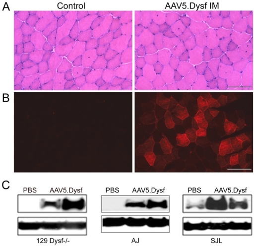 Intramuscular delivery of rAAV5.DYSF.4–6 week old dysferlin deficient mice were injected into the tibialis anterior muscle with 1011 vg of rAAV5.DYSF (n = 4 per group). Endpoint analysis occurred at 4 weeks post gene transfer and analyzed by histology, immunofluorescence and western blot analysis. (A) Hematoxylin and eosin staining demonstrates very mild pathology in Dysf−/− control mice which was not exacerbated by rAAV5.Dysf delivery. (B) Animals treated with rAAV5.DYSF demonstrated positive dysferlin expression by immunostaining compared to controls. (C) Western blot analysis confirmed a 237 kd full-length dysferlin band which was absent in control tissue except in SJL/J controls which have ∼15% residual dysferlin protein (PBS). Scale bar = 100 µm.