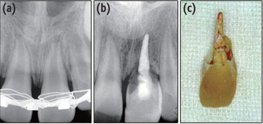 (a) A 12-year old male patient visited for reposition of the avulsed tooth (center). The extra-oral time before reposition was about two hours; (b) Root of the repositioned tooth became severely resorbed after 4 years; (c) Extracted tooth showed almost no root structure left.