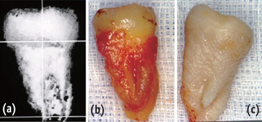 (a) 3-D CT image; (b) extracted donor tooth; (c) computer-aided prototyped model (starch).