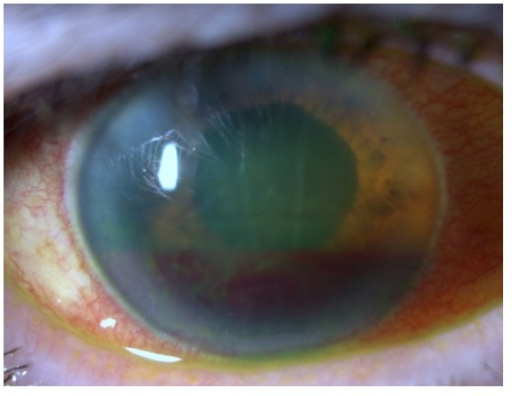 Biomicroscopy OD after 5 weeks—Descemet's folds and hyphema without hypopyon.