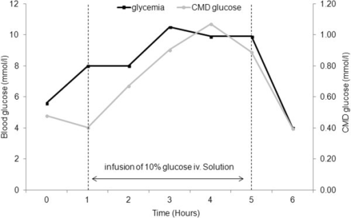 Cerebral microdialysis-guided management of glycemic control in individual patients. Example of a patient showing a linear relationship between blood and brain glucose, measured by cerebral microdialysis (CMD) glucose. Because of low CMD glucose <1 mmol/L, infusion of a 10% glucose solution was administered and was associated with a parallel increase of both arterial blood and CMD glucose. This illustrates the potential value of CMD for the management of blood glucose control in patients with severe brain injuries, aiming to prevent secondary systemic insults (brain glucopenia in this case).