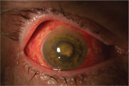 Anterior segment photograph of a patient with endophthalmitis following pars plana vitrectomy operated for rhegmatogenous retinal detachment. Cultures were positive for Bacillus cereus. Visual acuity was light perception after treatment.