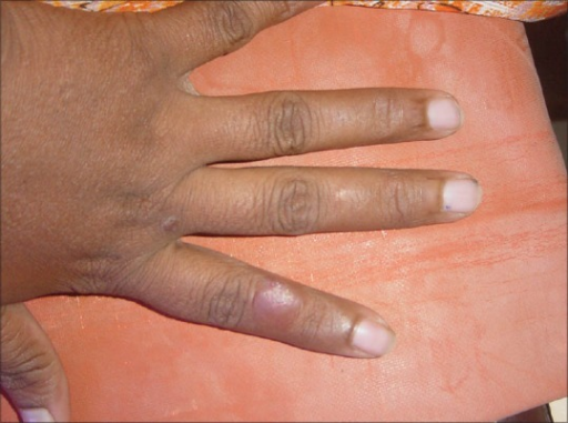 Solitary plaque over the index finger