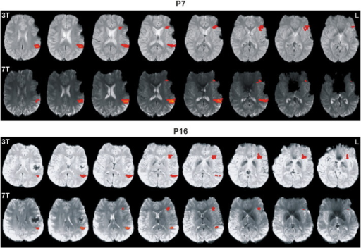 Functional MRI data (FWE < 0.05, left hemisphere on the right) of P7 and P16 comparing corresponding 3 T and 7 T functional activations. Note extended postoperative artifacts with P7. In contrast to the 7 T benefit for Wernicke's area, there is a clear 7 T signal loss in Broca's area.