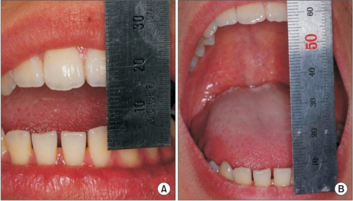 A. Preoperative maximum mouth opening distance for case 4. B. Postoperative maximum mouth opening distance for case 4.