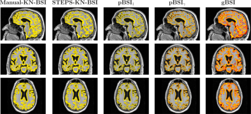 Example of whole brain XOR regions, for manual KN-BSI, STEPS-KN-BSI, pBSI1, pBSIγ, and gBSI, obtained on an AD patient. In yellow binary XOR regions and in a red-yellow scale the XOR pBSIγ and gBSI values from 0 to 1. Abbreviations: AD, Alzheimer's disease; BSI, boundary shift integral; gBSI, generalized boundary shift integral. (For interpretation of the references to color in this Figure, the reader is referred to the web version of this article.)