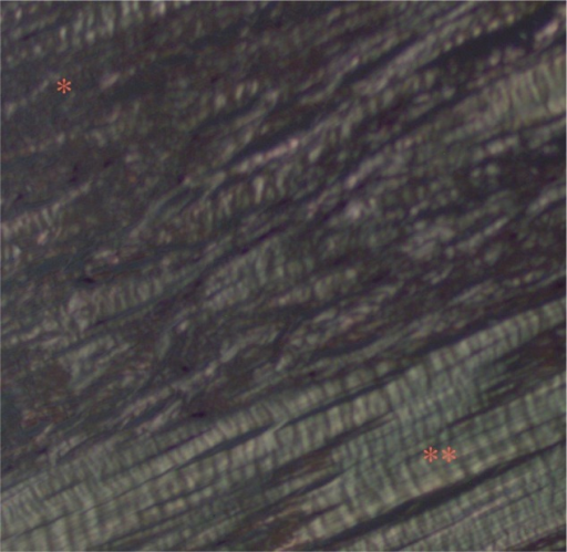Polarized light microscopy shows areas of fragmentation of the collagen and loss of normal polarization pattern (*).Notes: Areas with an appearance more typical of intact collagen arranged in tightly cohesive and well-demarcated bundles with a homogeneous polarization pattern are also visualized (**).