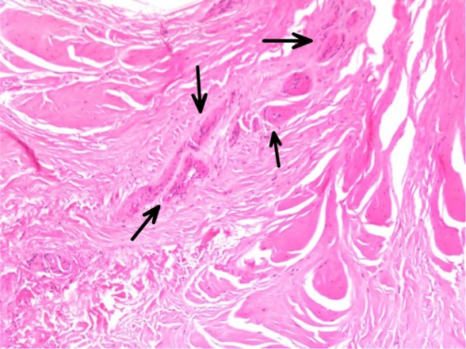 Vascular proliferation with clusters of capillaries visualized (arrows).