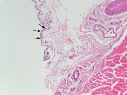 This histologic image of the long head of the biceps tenosynovium demonstrates reactive features, including synovial proliferation, enlargement of surface synovial cells (arrows), and vascular proliferation.Note: There is an absence of neutrophils, indicating a physiologic response in the absence of acute inflammation.