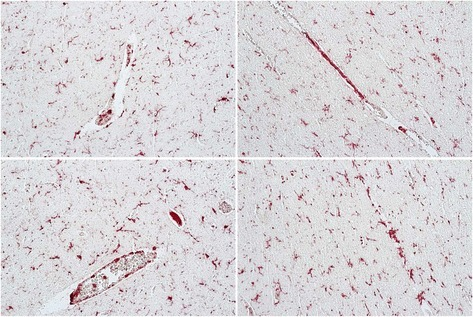 Abundant Iba1/AIF-1 positive parenchymal and perivascular macrophage/microglia (red color) costain for osteopontin (OPN) (brown color) expression in tissue from the occipital lobe of an HIV-infected individual with asymptomatic neurocognitive impairment (ANI). Paraffinembedded human autopsy tissue from the occipital lobe (National NeuroAIDS Tissue Consortium). Antigen retrieval was performed in citric acid buffer pH 6.0 and slides were stained sequentially with rabbit polyclonal antisera against Iba1/AIF-1 (SIGMA) overnight at 4°C followed by incubation with goat-anti-rabbitalkaline phosphatase (AP) secondary for 1 hr at room temperature and developed with permanent FastRed Quanto (ThermoFisher) (red color). Slides were then incubated with mouse monoclonal antibody to OPN (MAB194, Maine Biotechnology) at room temperature for 2 hrs followed by goat anti-mouse-horse radish peroxidase for 1 hr and developed with 3,3'-diaminobenzidine (brown color). Images were taken on an Axio Observer A1 inverted microscope (Zeiss) at 20x magnification. Adjustment of the image brightness, contrast and sharpness was performed with Adobe Photoshop 5.5 using the same settings for each image.