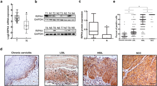 qRT-PCR, western blot and immunohistochemistry analyses of RIPK4.(a) qRT-PCR analysis of RIPK4 mRNA expression in 101 fresh CSCC tissues (T) and 30 paracancerous tissues (N). Expression levels were normalized to those of EFF1A1. (b) RIPK4 protein levels were determined by western blot in 8-paired CSCC tissues (T) and paracancerous tissues (N). GAPDH was used as a loading control. (c) Quantitative analysis of RIPK4 protein levels by western blot was presented as median ± interquartile. (d) RIPK4 immunohistochemical staining in representative cases from each cervical lesion. The scale bar represents 50 μm. (e) Expression of RIPK4 in each cervical lesion based on immunohistochemical scoring, as determined by the percentage of positive cells with strong staining. Values are the median with interquartile range.*P < 0.05 by the Wilcoxon rank-sum test.