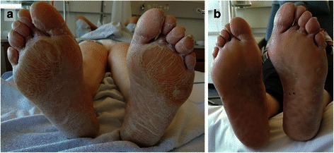 Laminar plantar hyperkeratosis on both feet with enhancement of areas under compressive stress (a) before treatment and (b) after three cycles of chemotherapy (punch marks on left sole)