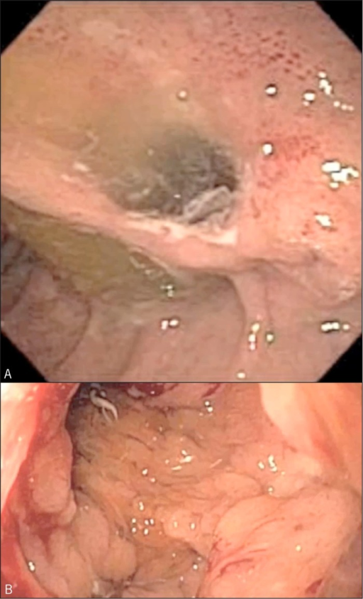 (A) Fistula formation between main pancreatic duct, stomach, and duodenum. (B) Intracystic polypoid lesions seen on pancreatoscopy.