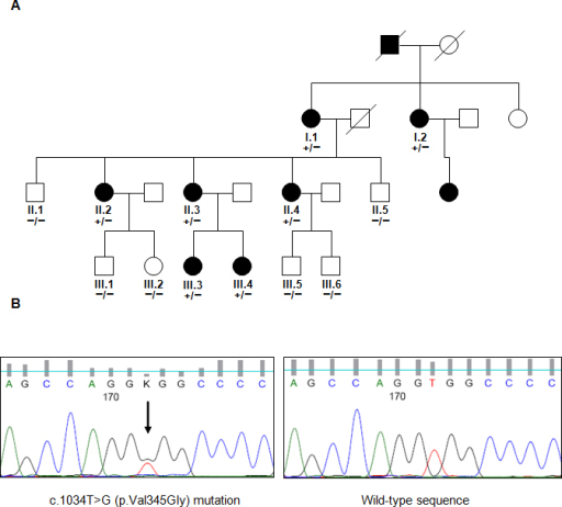 Pedigree and Sanger sequencing of familly RPT100. A: Pedigree of the adRP family RPT100, which carries the mutation p.Val345Gly in RHO. Capillary Sanger sequencing showed either the presence of the mutation (+) or of the wild-type allele (−). Squares and circles represent men and women, respectively. The open symbols represent unaffected family members, while the completely filled symbols represent patients with retinitis pigmentosa (RP). B: Fluorogram representation of the Sanger sequencing of mutation c.1034T>G in the RHO gene.