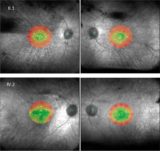 Lower macular sensitivity is shown with age. Microperimetric map image (MAIA, Topcon) of II:1 and son IV:2 (from family RPT65) who show normal sensitivity in the central macula (green area) and decreased sensitivity at the peripheral macula (red area). Thirty-six stimulus locations covering the central 10° field were tested.