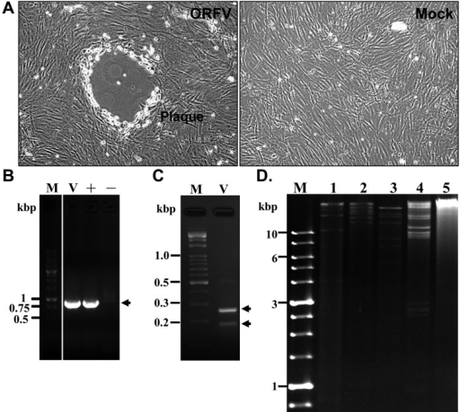 Cytopathic effect on primary goat testis cells caused by cellular lysate containingORFVs. (A) The infected primary goat testis cells showed rounding, shrinking anddetachment, and eventually formed a viral plaque (200 × magnification). Mock is theimage of uninfected cells. (B) Detection of orf viral DNA by PCR. The isolatedplaque (v) showed the expected sizes (~900 bp, as indicated by the arrow) ofamplified products of partial B2L gene. The positive control (+) wasthe virus-infected cell lysate in PCR; the negative control (–) wasdone without any DNA template. M is DNA size markers. (C) Identification of isolatedORFVs by the single-step PCR. As the PCR amplification yielded two DNA fragmentswith characteristic sizes (180 and 254 bp, as indicated by arrows), it indicated theisolated ORFV is the Hoping strain (Chan et al., 2009). (D)Patterns of orf viral DNA after restriction enzymes digestion. Lane 1: DNA treatedwith EcoR I; lane 2: treatment with BamH I; lane 3: treatment with Hind III; lane 4:treatment with Kpn I; lane 5 is the uninfected cell, and the stained DNA is smearingafter Kpn I digestion. M is the DNA size markers.
