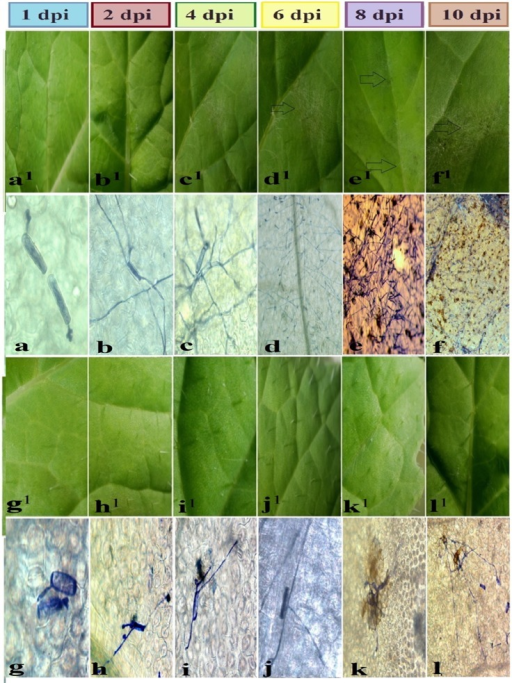 Symptoms of Erysiphe cruciferarum on leaves infected of B. napus of 6 time points.Symptom images were (a1, b1, c1, d1, e1, f1) and light micrograph were (a, b, c, d, e, f) for leaves of R. alboglabra infected by pathogen were (g1, h1, i1, j1, k1, l1) and light micrograph were (g, h, i, j, k, l) for leaves of RRCC infected by pathogen at 1, 2, 4, 6, 8 and 10 days post-inoculation (dpi) respectively. Stocks indicate to colonies and the growth of pathogenic fungus. Scale bars for light micrograph at 8 and 10 dpi are 25 μm.