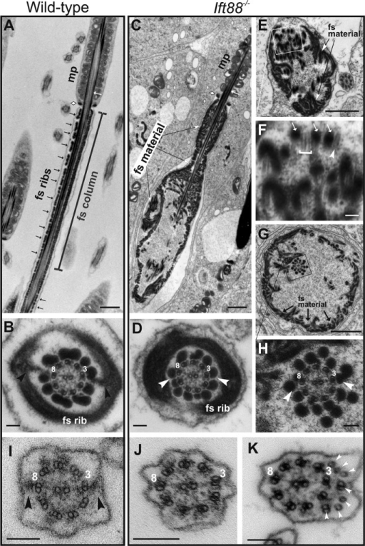 Principal pieces of Ift88−/− spermatids have truncated axonemes, lack fibrous sheath longitudinal columns, accumulate fibrous sheath rib material, and have numerous ectopically assembled outer dense fibers and microtubules. (A) Longitudinal section through the developing flagellum of a wild-type step 15 spermatid; the annulus (white diamond) marks the boundary between the midpiece (mp) and the principal piece, in which can be seen fibrous sheath ribs (black arrows) and a fibrous sheath longitudinal column (bracket) on either side of the axoneme. (B) A cross-section through the principal piece of a wild-type step 15 spermatid showing the fibrous sheath longitudinal columns (arrowheads) associated with doublets 3 and 8 and the fibrous sheath ribs that are attached to the longitudinal columns and surround the axoneme. (C) A longitudinal section through a Ift88−/− step 15 spermatid, comparable to the section of the wild-type spermatid shown in A; the boundary between the midpiece (mp) and the principal piece is marked by the annulus (white diamond). The end of the flagellum is swollen and filled with what appears to be unorganized fibrous sheath rib material. (D) Cross-section through the principal piece of an Ift88−/− step 15 spermatid showing an axoneme, which has two extra outer dense fibers but otherwise appears to be normal. The fibrous sheath ribs are present, but the longitudinal columns, which normally are associated with doublets 3 and 8, are missing (arrowheads). (E) Cross-section through a swollen principal piece of an Ift88−/− step 15 spermatid. No axoneme is present; numerous ectopically assembled outer dense fibers are visible, and a large amount of fibrous sheath rib material has accumulated around the periphery of the swollen flagellum. (F) A higher magnification of the boxed region in E. The outer dense fibers (arrows) are associated with singlet (arrowhead) or doublet (bracket) microtubules. (G) Another cross-section through the principal piece of an Ift88−/− spermatid. Although an axoneme is present, the fibrous sheath material remains associated with the distended flagellar membrane. (H) A higher magnification of the boxed region in G showing the axoneme, which lacks fibrous sheath longitudinal columns (arrowheads) and has supernumerary outer dense fibers. (I) Cross-section through a flagellum of a wild-type step 6 spermatid. The anlagen of the fibrous sheath longitudinal columns (black arrowheads) is visible adjacent to doublets 3 and 8. (J, K) Cross-sections through flagella of Ift88−/− probable step 6 spermatids. The anlagen of the fibrous sheath longitudinal columns are missing. The mutant flagellum in K has supernumerary singlet and doublet microtubules (white arrowheads). Scale bars, 1 μm (A, C, E, G), 100 nm (B, D, F, H–K).