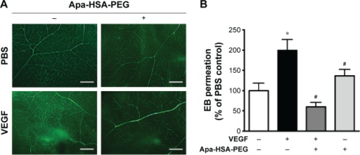Apa-HSA-PEG nanoparticles block VEGF-induced retinal vascular leakage in vivo.Notes: (A) Representative images of FITC-dextran-perfused retinal whole mounts. (B) Quantitative analysis of extravasated EB dye in the retinal tissues after intravitreal injection of rhVEGF (100 ng) and/or Apa-HSA-PEG nanoparticles (580 ng). Vascular leakage of EB dye in treated eyes was normalized relative to that in each contralateral control eye (means ± SEM, *P<0.05 vs PBS control, #P<0.05 vs VEGF, n=5). Scale bar =200 µm.Abbreviations: Apa-HSA-PEG, apatinib-loaded human serum albumin-conjugated polyethylene glycol; VEGF, vascular endothelial growth factor; FITC, fluorescein isothiocyanate; EB, Evans Blue; rhVEGF, recombinant human VEGF; SEM, standard error of the mean; PBS, phosphate-buffered saline.