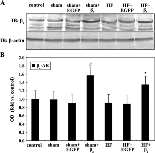 (Α) Western blotting for β2-adrenergic receptor (AR) protein expression in each group after 48 h culture of myocardial cells, compared with (Β) sham+EGFP, #P<0.05; compared with HF+EGFP, *P<0.05 (n=4). EGFP, enhanced green fluorescent protein; OD, optical density.