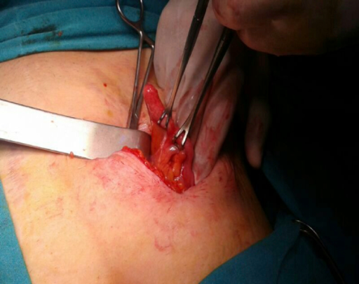 Intraoperative Lateral view of inflamed appendix in right inguinal hernia sac.