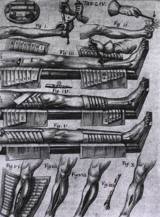 <p>Ten scenes show procedures for the amputation of a foot and treatment for compound fractures of the leg.</p>
