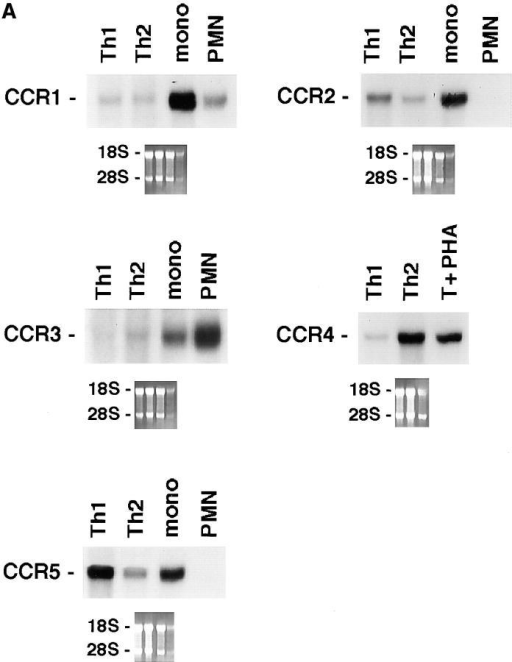 Differential expression of chemokine receptors in Th1s versus Th2s. 10 μg of total mRNA purified from Th1s and Th2s were used  in Northern blots analysis. Autoradiographies were obtained after 12 h of  exposure, except for CCR3 which required 7 d. Lane to lane variation in  RNA loading was <15%, as assessed by densitometric analysis of β-actin  expression. Results are representative of three experiments. (A) CCR1  through 5. (B) CXCR1 through 4.