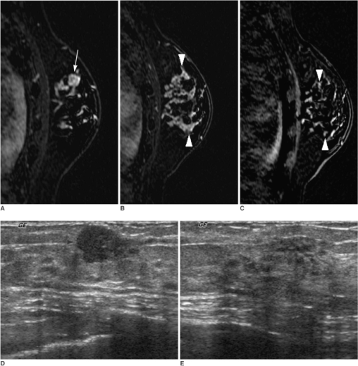 A 40-year-old woman with a 1 cm palpable cancer of the left breast.A, B. Dynamic enhanced and subtracted T1-weighted sagittal MR images show a 1 cm intensely enhancing main mass (arrow) (A) in addition to a 5 cm clumped segmental enhancement with washout (arrowheads) (B) in a different plane.C. A high signal intensity (arrowheads) of a 5 cm clumped segmental enhancement is noted on the reverse subtracted image.D. Initial US shows only a 1 cm hypoechoic mass (arrow) at a palpable site.E. Targeted US shows a normal-looking, but slightly heterogeneous parenchyma. We interpreted that the additional enhancing lesion on MR had no US correlate. On a frozen section examination during the surgical operation, the additional enhancing lesion at the surrounding parenchyma revealed a malignancy, which was confirmed as an extensive intraductal carcinoma with an invasive ductal carcinoma following mastectomy. The surgical plan was changed from conservative breast surgery to mastectomy without the consent of the patient.