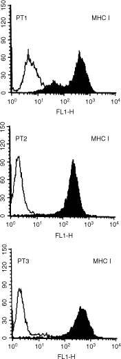 Expression of MHC Class I molecules on USPC cells. Surface antigen expression was measured by FACS as described under Materials and methods. A representative experiment is shown. Open profile: isotype control; solid profile: anti-MHC class I MAbs.