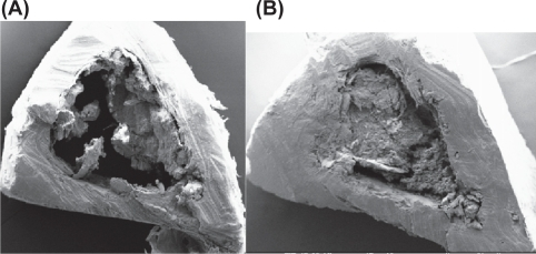 (A) SEM image of cortical part of tibia (HLS + P). (B) SEM image of cortical part of tibia (HLS + N + P).Abbreviations: HLS + P, hind-limb suspension + PEMF; HLS + N + P, hind-limb suspension + nanoparticle + PEMF; PEMF, pulsed electromagnetic field; SEM, scanning electron microscope.