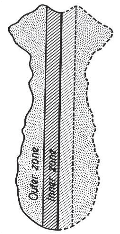 Schematic division of the sternum into inner and outer zone