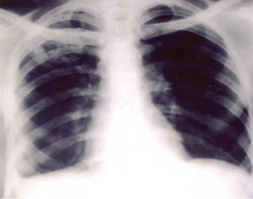 Xray chest PA view showing heterogeneous opacity in the right upper zone with blunting of the right costophrenic angle.