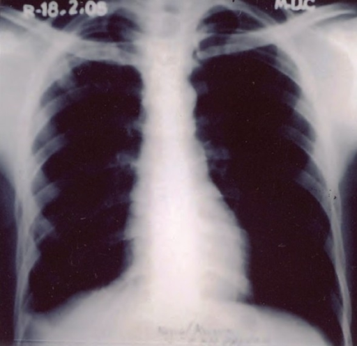 Xray chest PA view at 4 months showed clearing of the pleural on the left side with blunting of right costo-phrenic angle due to thickening of the pleura.